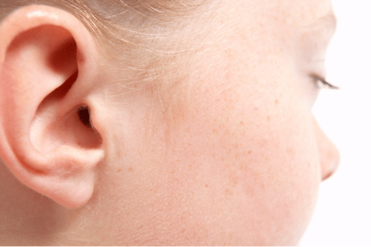 Korekta uszu zdjęcia przedipooperacji