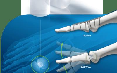 STOPY – paluch sztywny, implant CARTIVA